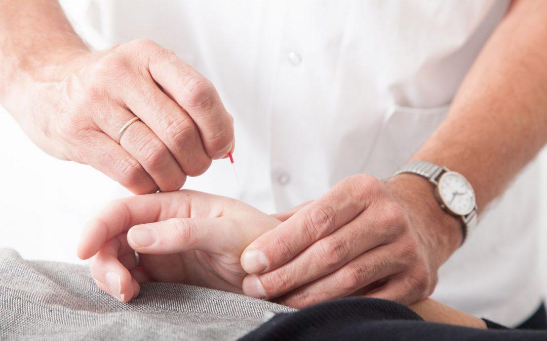 Pijnbestrijding met acupunctuur